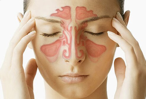 Top-Five-Home-Remedies-for-Sinus-Infection.jpg