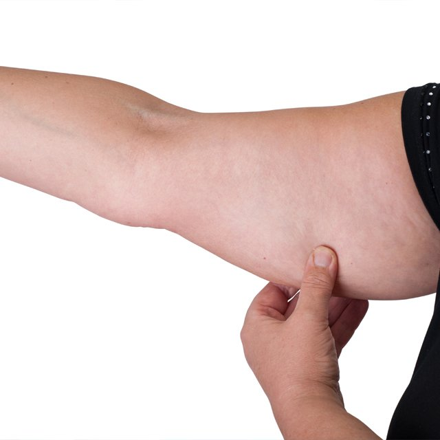 arm-fat-2.jpg