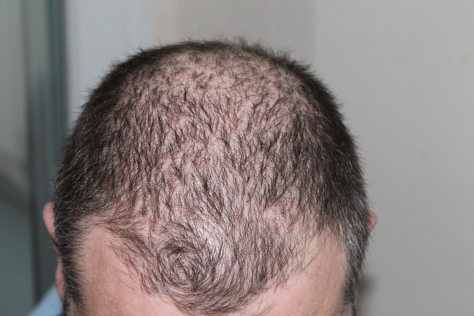 baldness-3.jpg