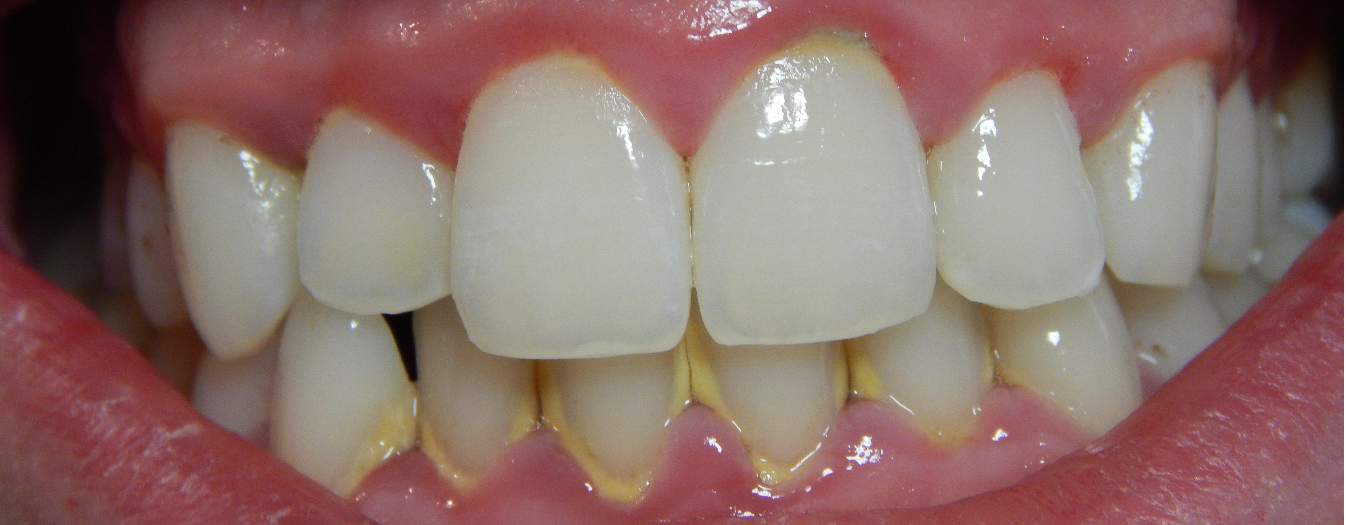 gingivitis-2.jpg