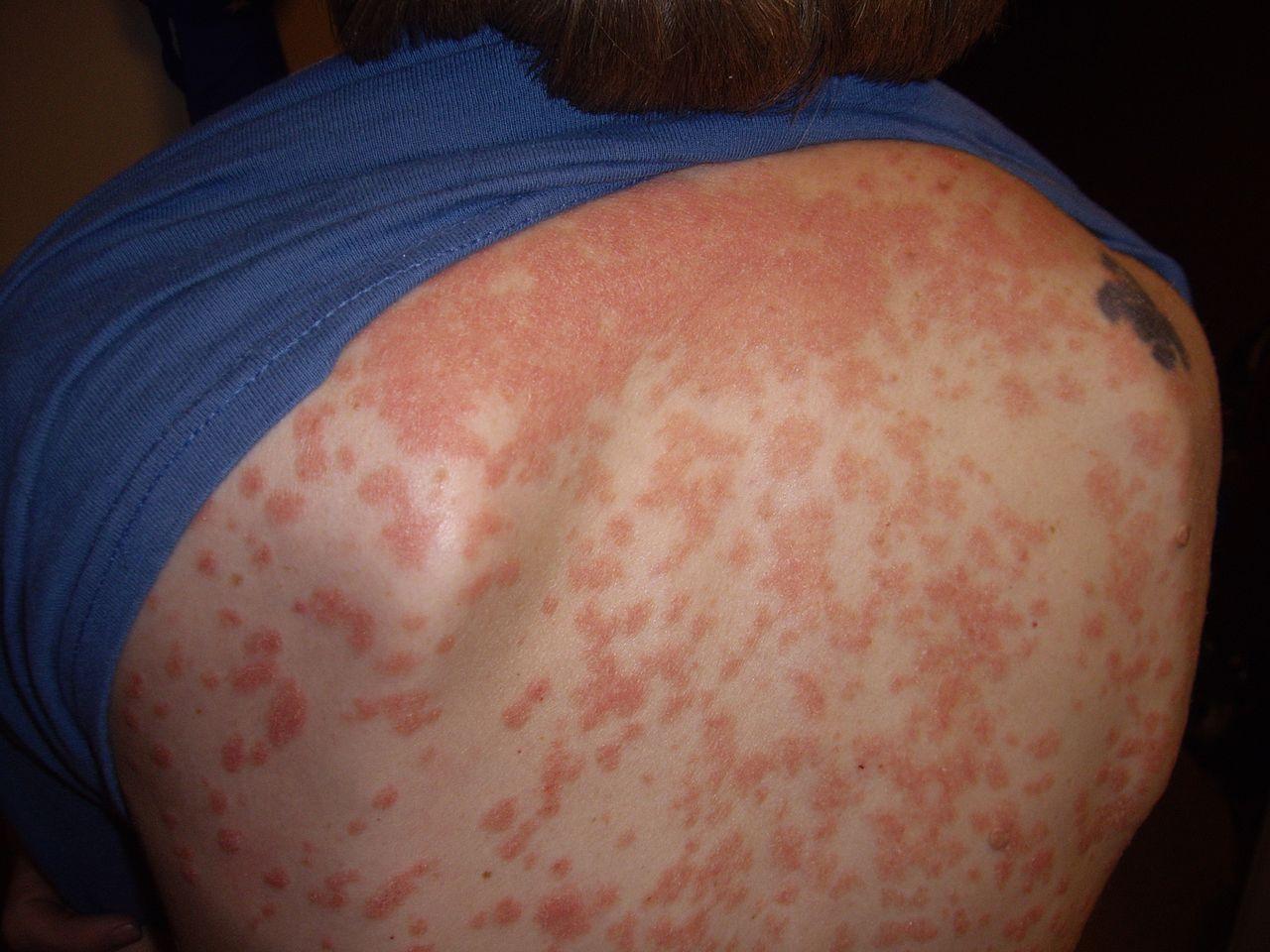 psoriasis-2.jpg