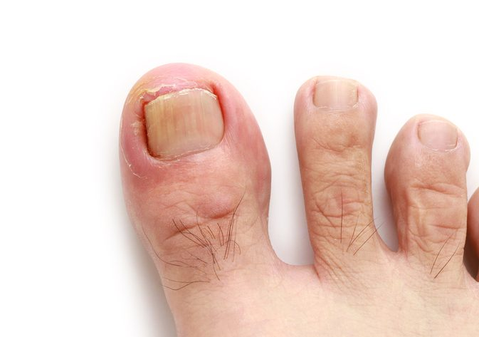 5-ways-to-get-rid-of-an-ingrown-toenail.jpg