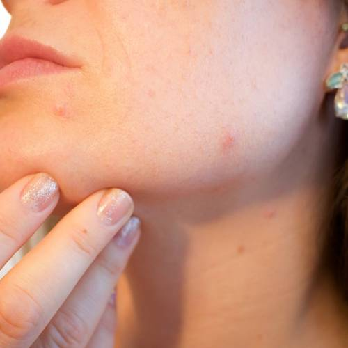 How To Get Rid Of Itchy Pimples On Face