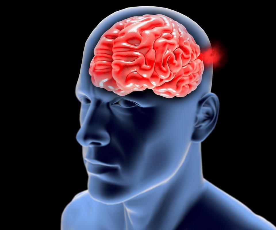 brain-aneurysm-003.jpg