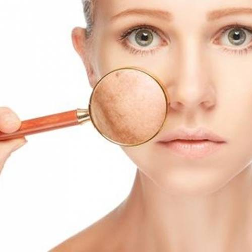 What are the Natural Treatments for Skin Pigmentation?