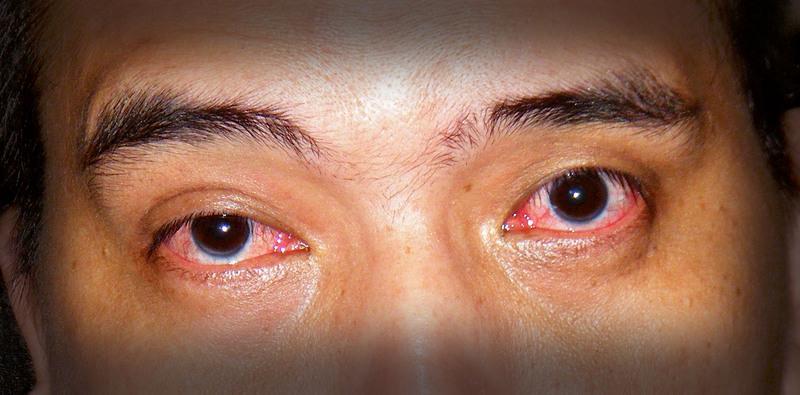 sore-eyes-3.jpg