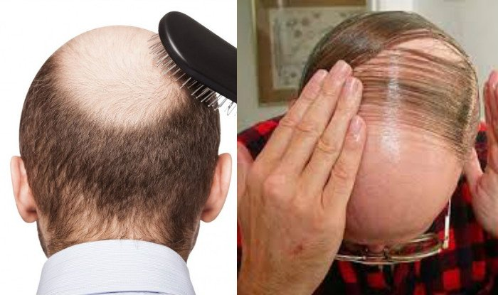 the effectiveness of as hair Two medications are approved for hair loss, and can be effective, especially if hair loss is caught and treated early.