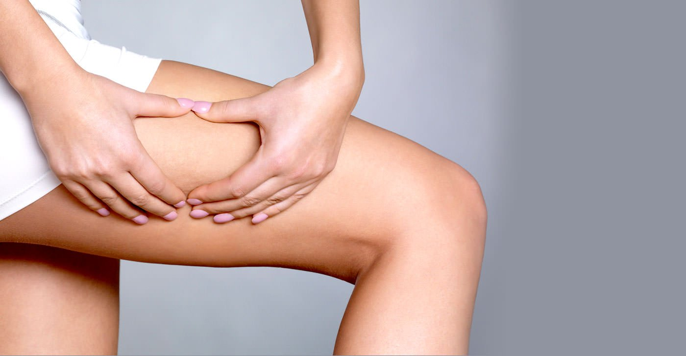 Easy-Tips-to-Permanently-Solve-Your-Cellulite-Problem.jpg