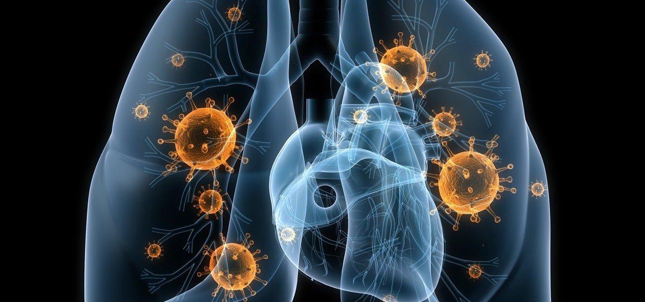 Pneumonia-3.jpg