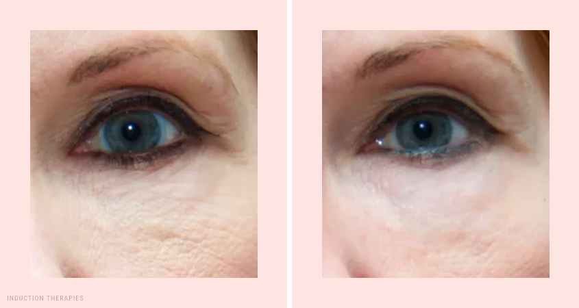 Collagen Solutions for Skin and Eyes