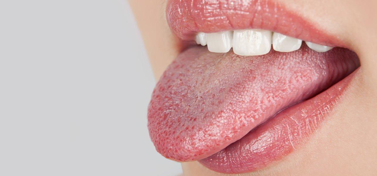 dry-mouth-1.jpg