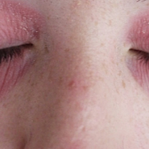 How Treat Dryness Around The Eyes Effectively