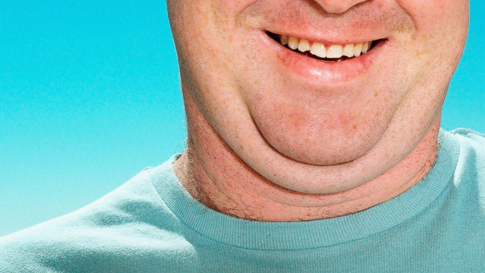 face-fat-2.jpg