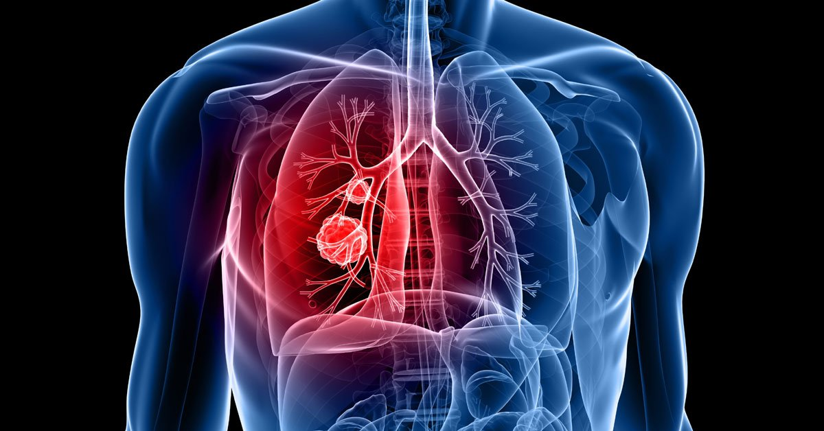 lung-cancer-2.jpg