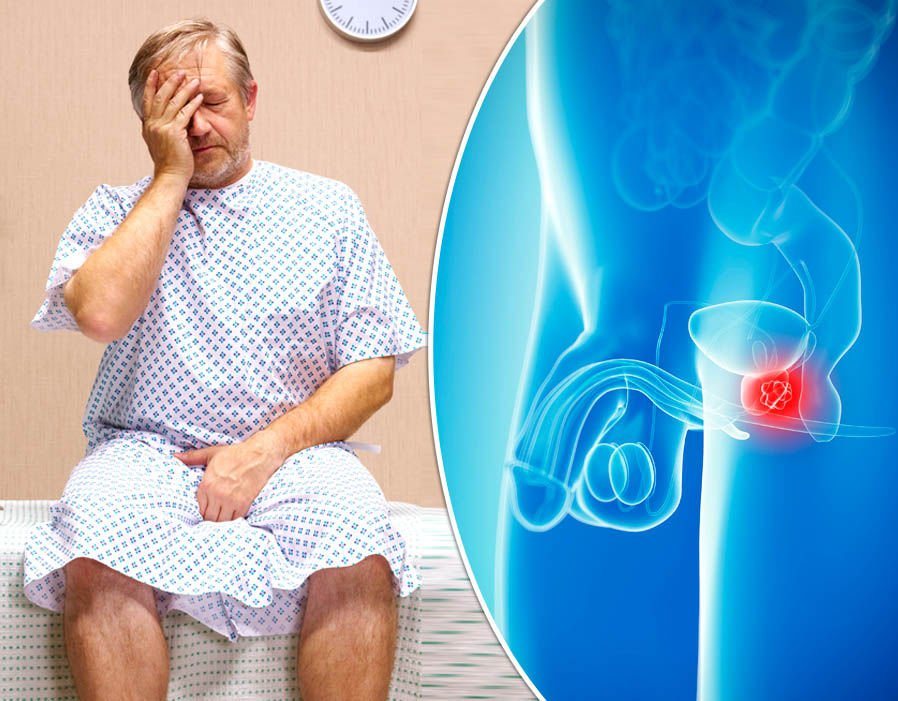 Treatments For Prostate Cancer Are These Really Effective -4723