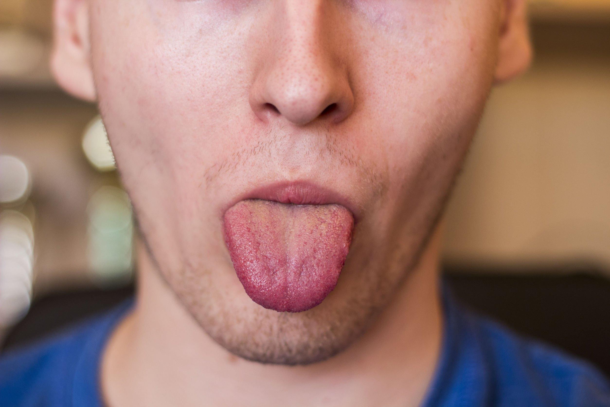 tingling-tongue-2.jpg