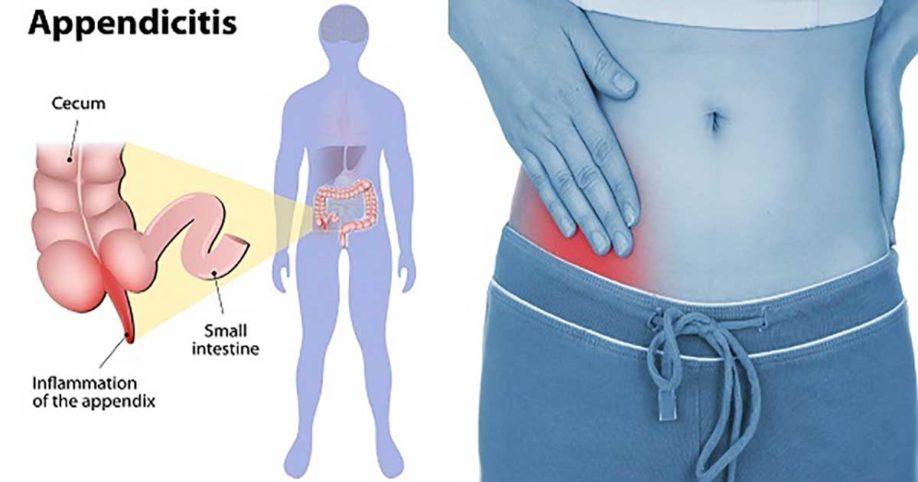 appendicitis-2.jpg