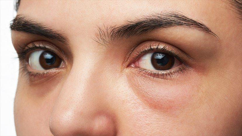 corneal-abrasion-2.jpg