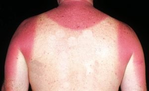 the most essential treatments for sunburn  health cautions