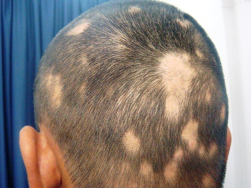 alopecia-areata-2.jpg