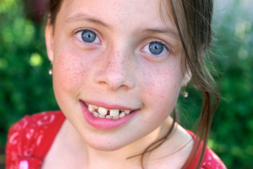 freckles-3.jpg