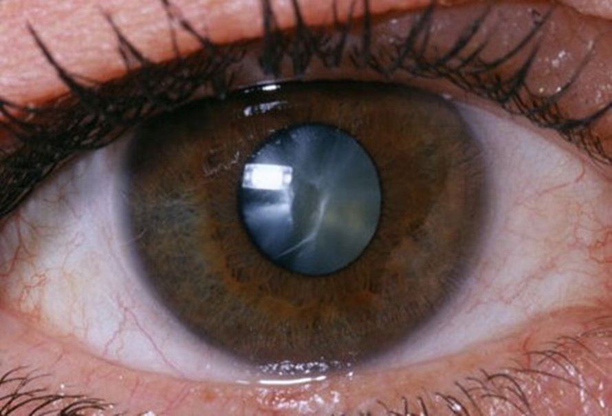 cataracts-1.jpg