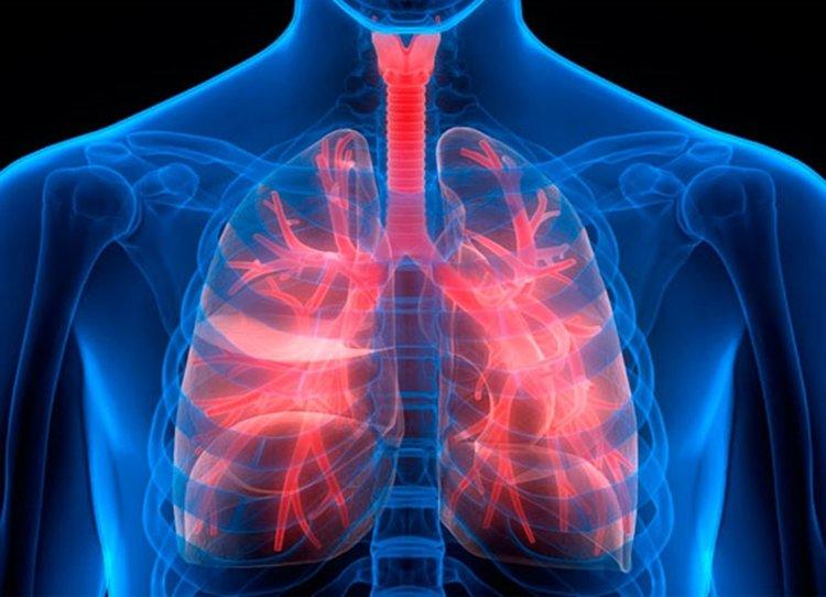 pulmonary-fibrosis-2.jpg