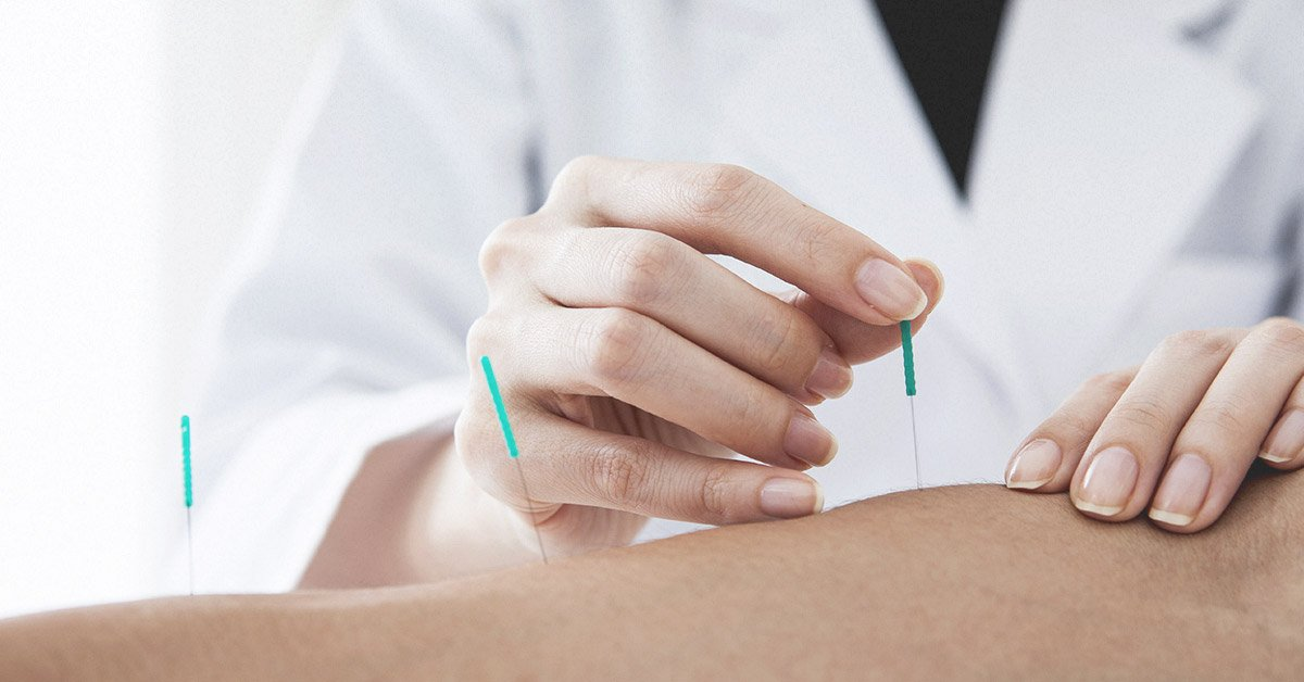 Image result for Extraordinary Benefits Of Acupuncture: