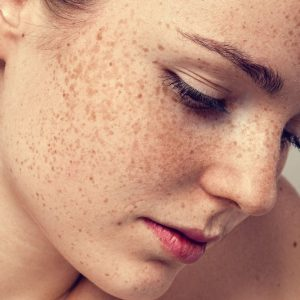 What Are The Most Beneficial Treatments For ...