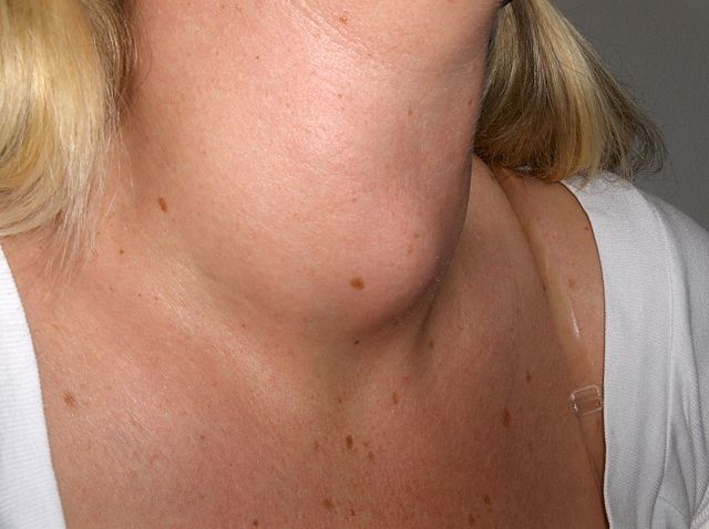 Natural-Remedies-for-Goiter-1.jpg