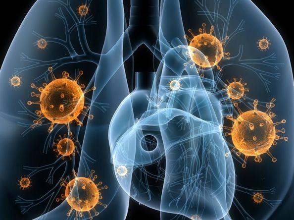 The Most Effective Home Remedies For Pneumonia