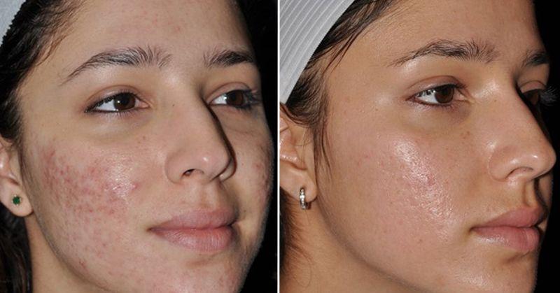 acne-scars-3.jpg