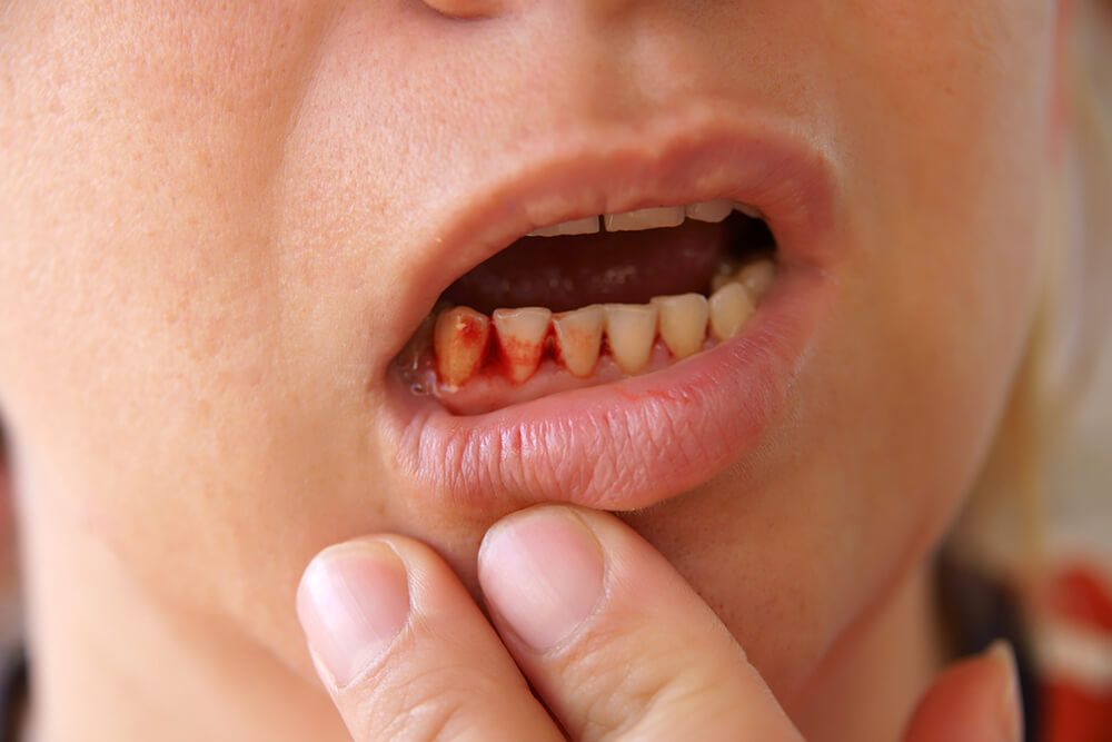 bleeding-gums-1.jpg