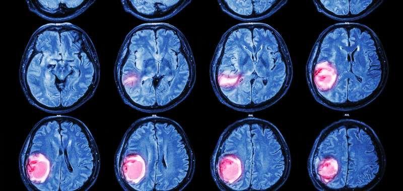 brain-tumor-3.jpg