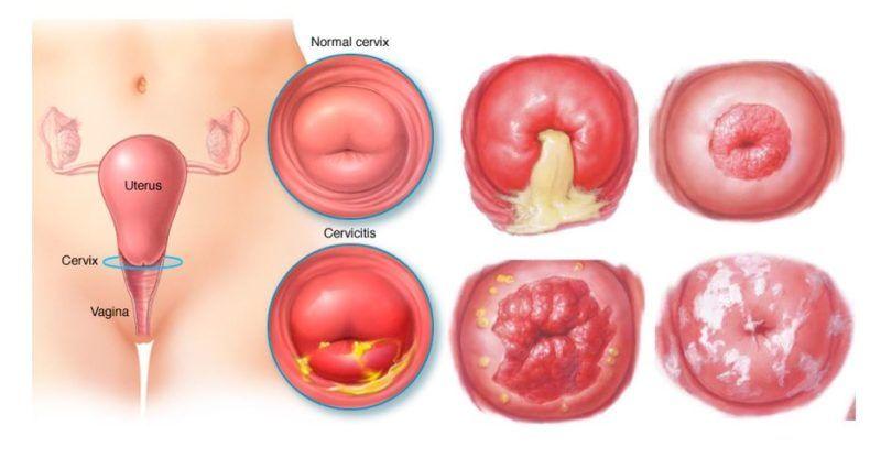cervicitis-1.jpg
