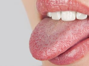 Treatments For Dry Mouth: Are These Really Good?
