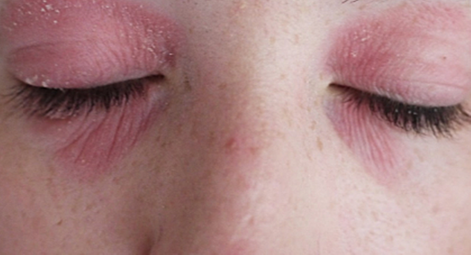 dry-skin-around-the-eyes-1.png