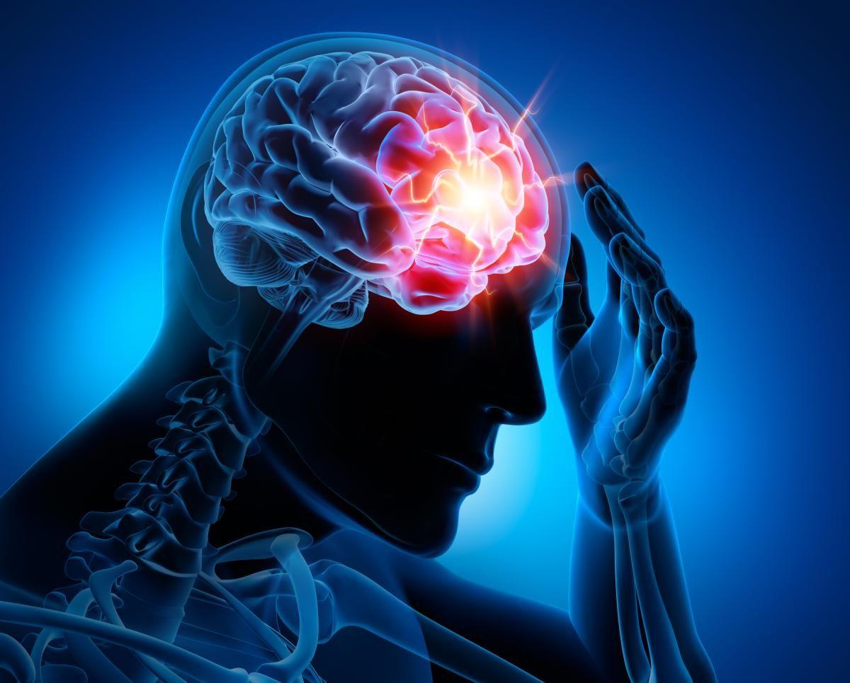 epilepsy-1.jpeg