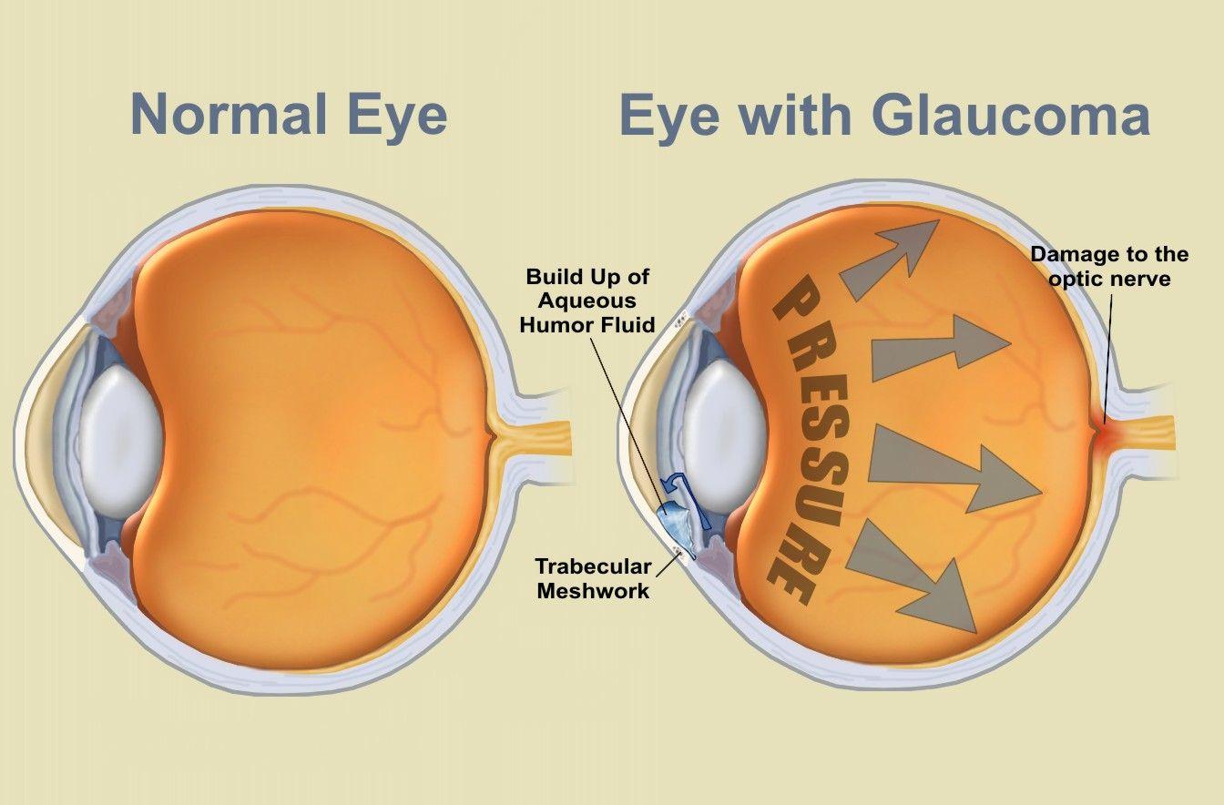 glaucoma-2.jpg