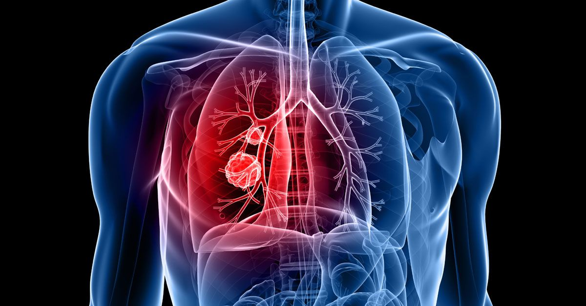 lung-cancer-2.jpg