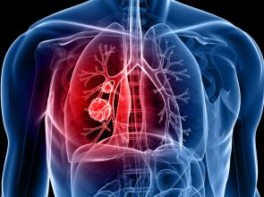 Treatments For Lung Cancer: Are These Really Effective?