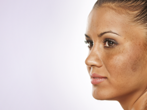 Treatments For Melasma: Are These Really Beneficial?