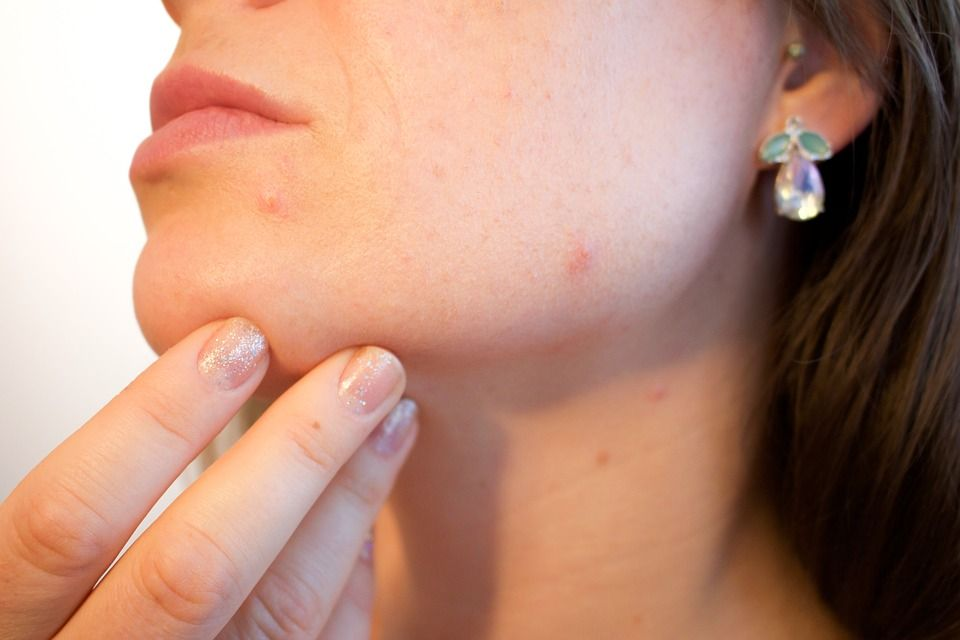 natural-ways-in-getting-rid-of-acne-1.jpg