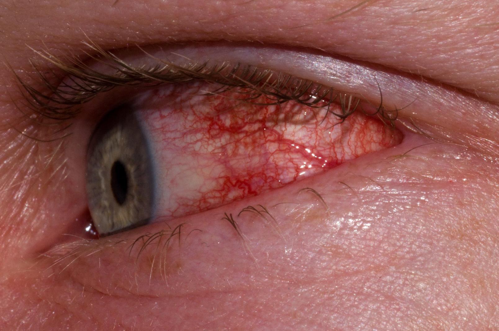 pink-eye-3.jpg
