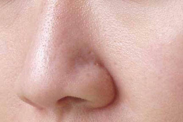 pores-2.jpg